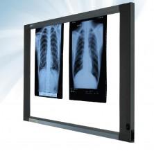 X ray films scrap